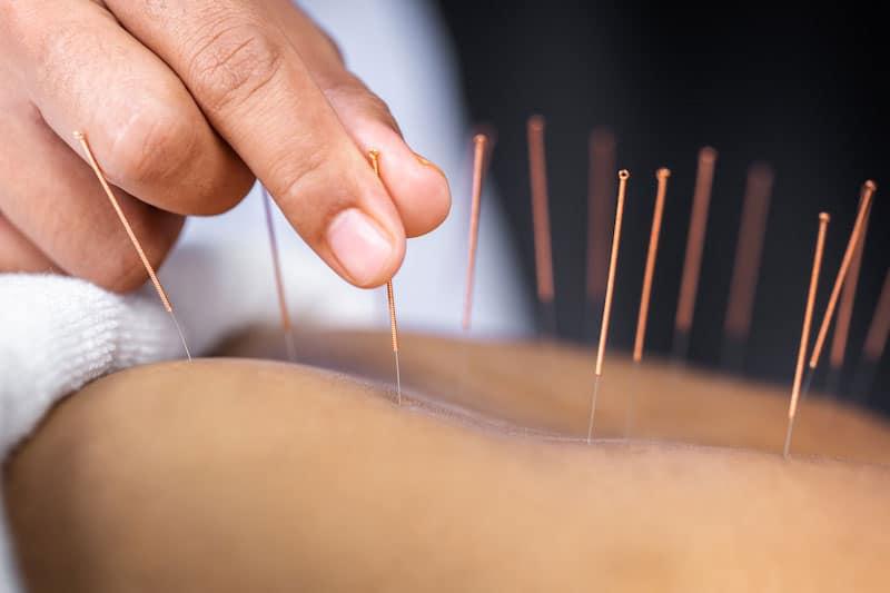 acupuncture 3