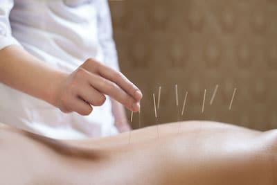 acupuncture sm